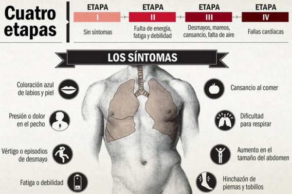 Piezas vitales de Causas de la hipertensión